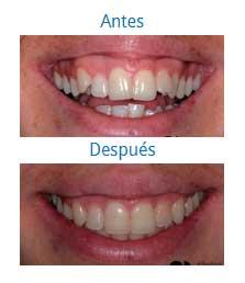Ortodoncia 9