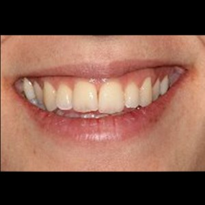 Lingual Orthodontics. Treatment of complex malocclusion class III and open bite in adult patient 21