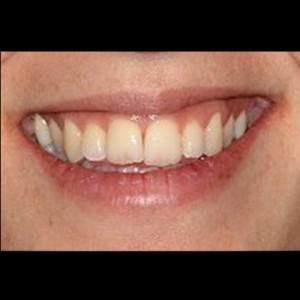 Ortodoncia Lingual. Tratamiento de una maloclusión compleja de clase III y mordida abierta en paciente adulto. 21