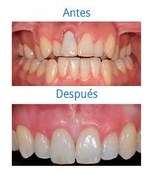 Caso sobre Estética Dental 9