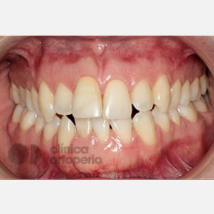 Ortodoncia lingual. Re-tratamiento de ortodoncia 1