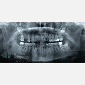 Lingual Orthodontics. Impacted canines. Multidisciplinary case: Orthodontic treatment and Implants 1