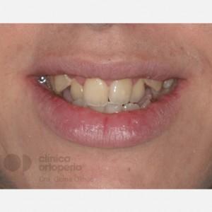 Ortodoncia Lingual. Clase III, Mordida Abierta, Apiñamiento severo, Extracciones 1