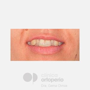 Ortodoncia Lingual. Mordida abierta, apiñamiento severo. Injerto encía 1