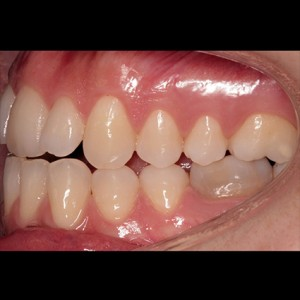 Lingual Orthodontics. Treatment of complex malocclusion class III and open bite in adult patient 4