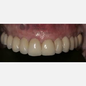 Implantes sin cirugía 2