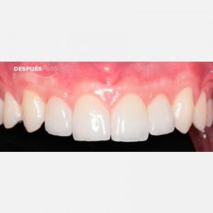Porcelain veneers after aggressive periodontitis healing 2