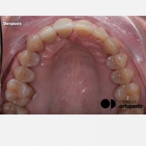Ortodoncia Invisible en casos en los que se ha perdido hueso por Periodontitis 2