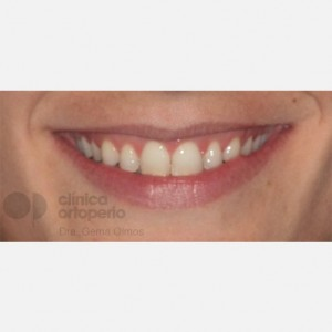 Lingual Orthodontics. Overbite excess, gingival smile, mild upper overcrowding 2