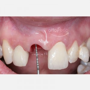Orthodontic extrusion to regenerate papillae + Immediate implants + Aesthetic prosthesis 4