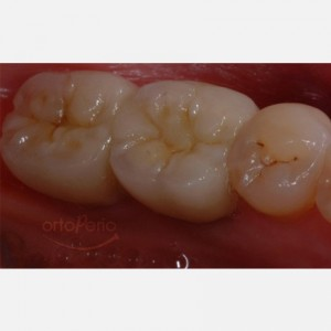 Cosmetic implantology in molars 2