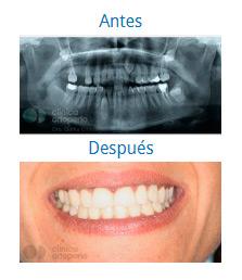 Implantes 10