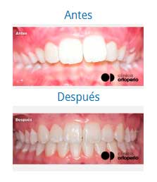 orthodontics 10