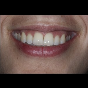 Lingual Orthodontics. Treatment of complex malocclusion class III and open bite in adult patient 22
