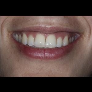 Ortodoncia Lingual. Tratamiento de una maloclusión compleja de clase III y mordida abierta en paciente adulto. 22