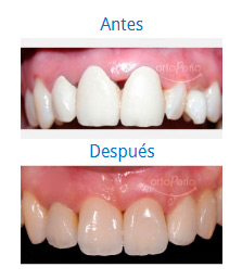 Dental Aesthetics 10