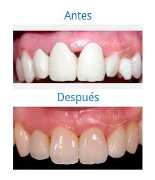 Caso sobre Estética Dental 10