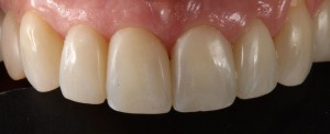 Closure of black triangles in upper incisors with composite veneers 2