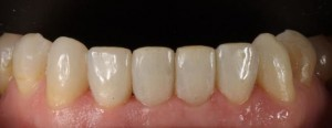 Restoration of incisors and upper canines wear with composite veneers 2