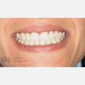 Ortodoncia Lingual. Caninos Incluidos. Caso Multidisciplinar: Ortodoncia e Implantes 2