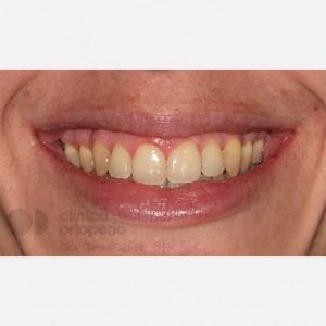 Ortodoncia Lingual. Clase III, Mordida Abierta, Apiñamiento severo, Extracciones 2