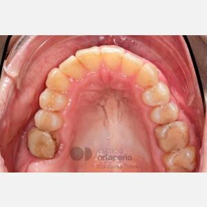 Ortodoncia Lingual. Mordida abierta, apiñamiento severo. Injerto encía 4