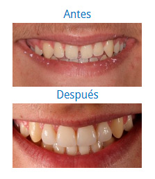 Estética Dental 3