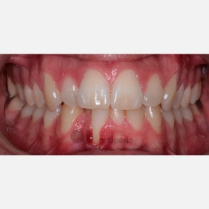Invisalign orthodontics and connective tissue graft. Severe overcrowding 5