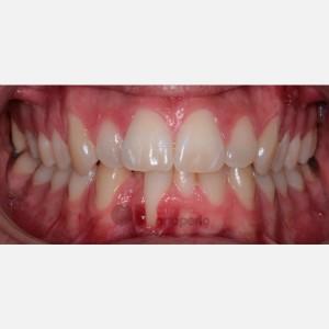 Ortodoncia Invisalign e Injerto de tejido conectivo. Apiñamiento severo 5