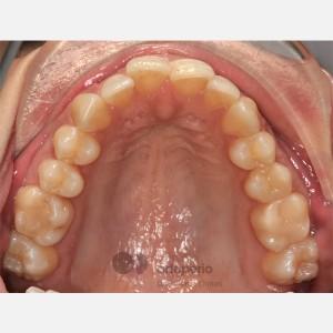 Ortodoncia Lingual. Apiñamiento 5