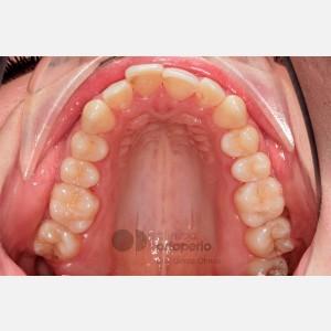 Ortodoncia lingual. Re-tratamiento de ortodoncia 3