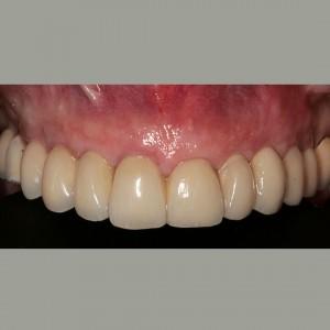 Colocación de implantes dentales sin cirugía 5