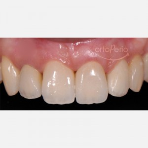 Orthodontic extrusion to regenerate papillae + Immediate implants + Aesthetic prosthesis 5