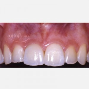 Removal of a necrotic tooth and placement of an implant and an immediate crown 5