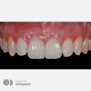 Lingual Orthodontics + Bone graft + Dental Implants + Zirconium crowns- Porcelain 5
