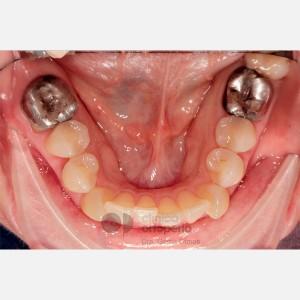 Ortodoncia Lingual. Mordida abierta, apiñamiento severo. Injerto encía 5