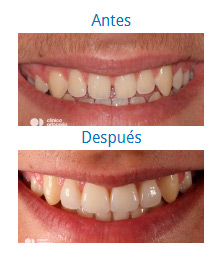 Estética Dental 4