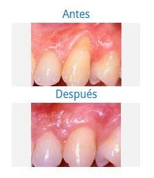 periodontics 4
