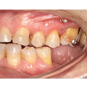 Molar intrusion with micro-implants, without orthodontic appliances 6