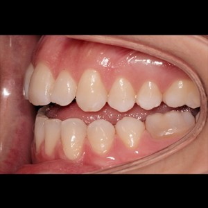 Lingual Orthodontics. Treatment of complex malocclusion class III and open bite in adult patient 6