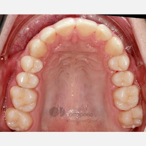 Severe overcrowding. Lingual Orthodontics without extractions. Stripping 4