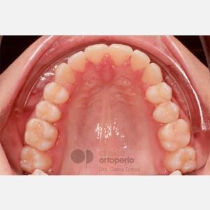 Ortodoncia Lingual. Apiñamiento 6