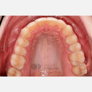 Ortodoncia lingual. Re-tratamiento de ortodoncia 4