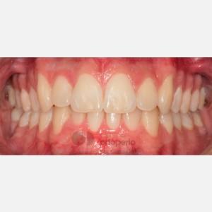 Ortodoncia Invisalign e Injerto de tejido conectivo. Apiñamiento severo 6
