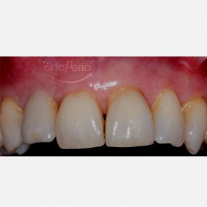 Bone graft+ implant (lateral incisor lost due to periodontitis) 5