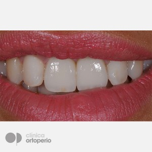 Lingual Orthodontics + Bone graft + Dental Implants + Zirconium crowns- Porcelain 6