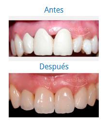 Implants 5