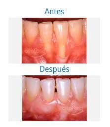 periodontics 5