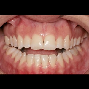 Lingual Orthodontics. Treatment of complex malocclusion class III and open bite in adult patient 7
