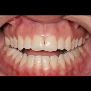 Ortodoncia Lingual. Tratamiento de una maloclusión compleja de clase III y mordida abierta en paciente adulto. 7